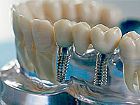 whether it is possible in your case, dental implants