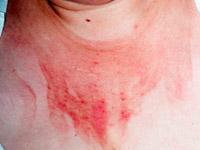 you remove the skin inflammation ointments and creams with hormones and without