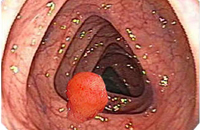 colon polyps causes and symptoms