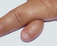 short of polydactyly