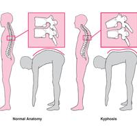 الأعراض الرئيسية وخيارات علاج Kifos
