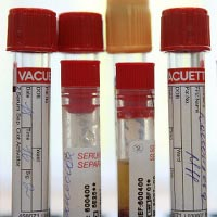 Tests used to diagnose congenital immunodeficiency