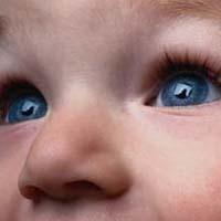 Хидроцел код деце у питањима и одговорима