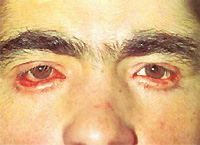 ectropion symptoms and treatment