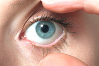 manifestation and treatment of trachoma-2