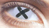 how and why developing macular degeneration