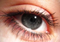 amblyopia or lazy eye