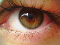 Augenermüdungssyndrom (Asthenopie)