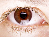 cataract causes and manifestations