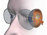 causes farsightedness