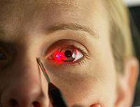 علاج إعتام عدسة العين