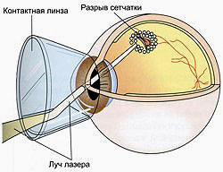 Laser coagulation in the treatment of retinal detachment