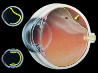Дезинсерция на ретината