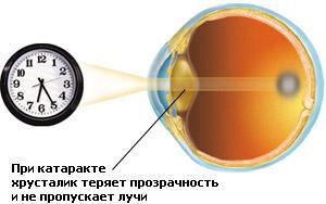 Катаракта. Има ли живот след катаракта?