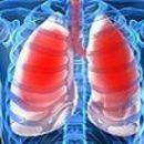 what hemothorax