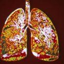 first aid for pulmonary edema