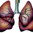 treatments for sarcoidosis