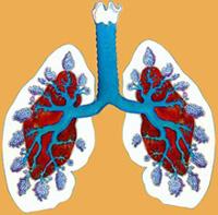 treatment of emphysema