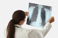 Пневмония: как да разпознаем и какво да правим