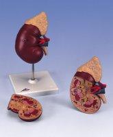 adrenal disease in children