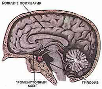 causes of acromegaly