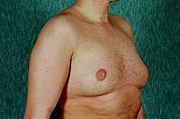 Хирургия за елиминиране на гинекомастия