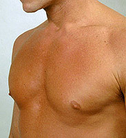 increase in mammary glands in males