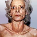 What is hyperthyroidism