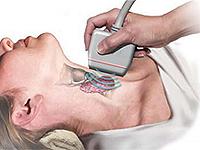 Болести на щитовидната жлеза