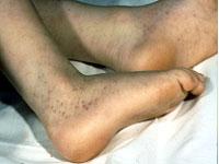 types of systemic vasculitis