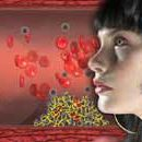 the main symptoms and treatment of antiphospholipid syndrome