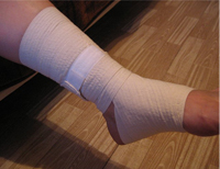 diagnosis and treatment of lymphedema