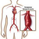 the main manifestations and treatments for abdominal aortic aneurysm
