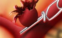 Основни симптоми и лечение на периферни артериални аневризми
