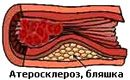 atherosclerosis of the lower extremities