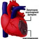 atherosclerosis of the coronary arteries of the heart