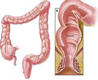 the main symptoms of fistula rectum