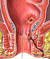 complications of Crohn's disease and their treatment