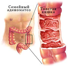 Family diffuse adenomatosis polyposis