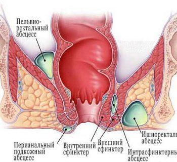 acute abscess