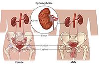 Pflege bei chronischer Pyelonephritis