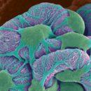 dysmetabolic oxalate nephropathy