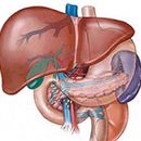 What is steatosis