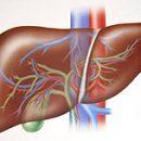 What is Hepatitis E