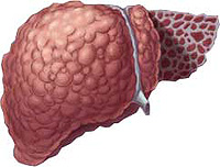 Какво е цироза на черния дроб
