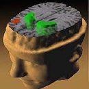 Principles treatment of schizophrenia