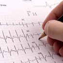 briefly about cardiosclerosis