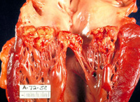 the main symptoms of infective endocarditis
