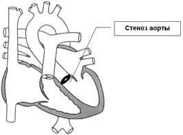 Congenital heart disease aortic stenosis, coarctation of the aorta
