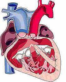 Вроден сърдечен дефект